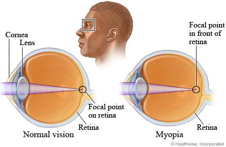 myopia-diseases-marathipizza01