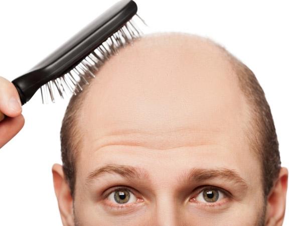 hair-loss-men02