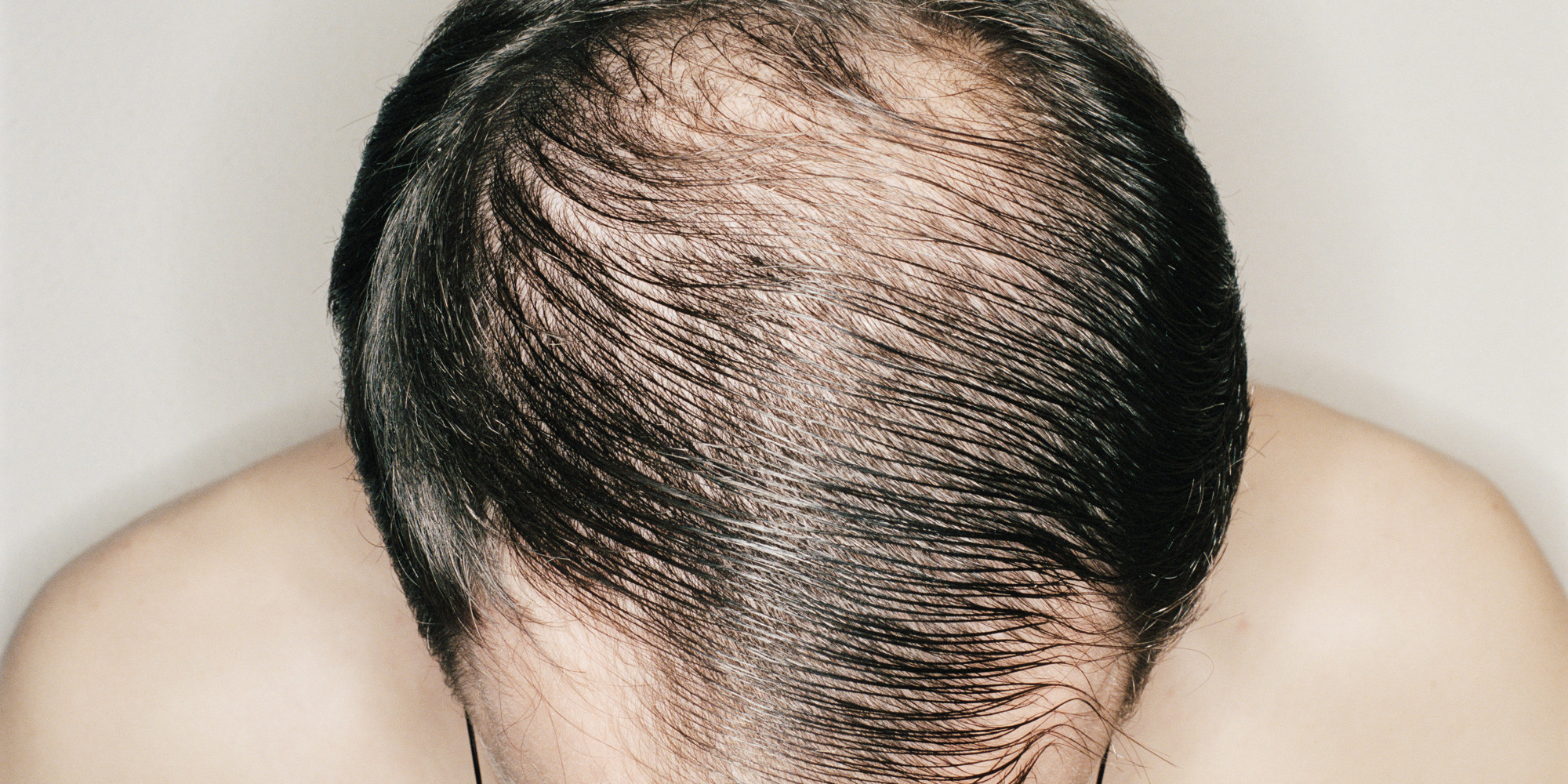 hair-loss-men04