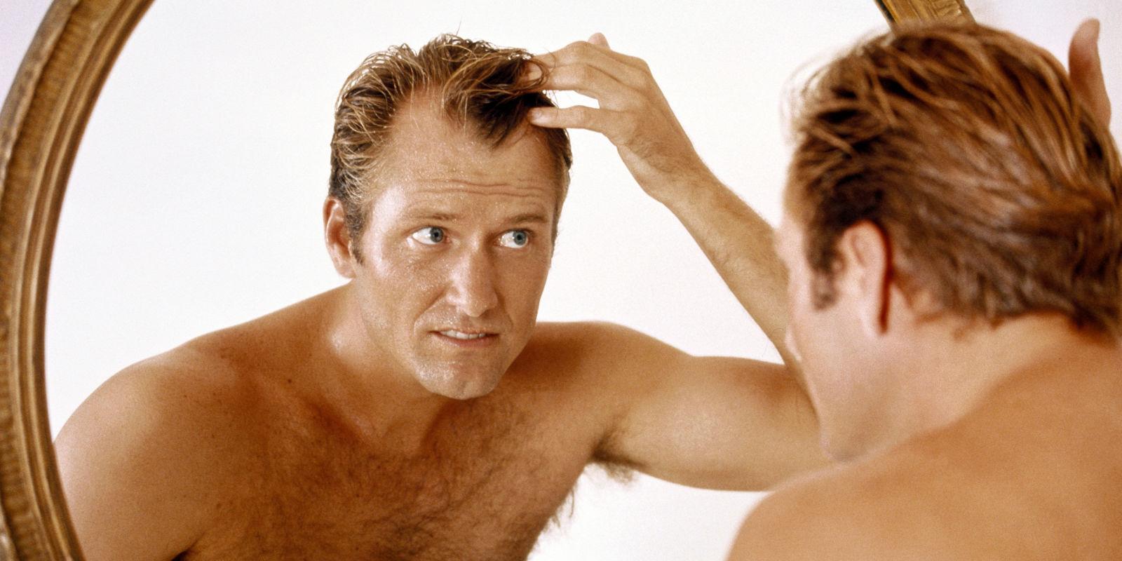hair-loss-men05