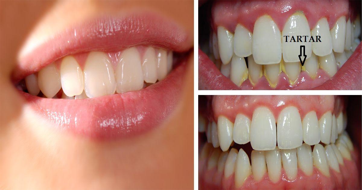 teeth-marathipizza02