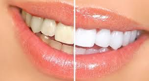 teeth-marathipizza05