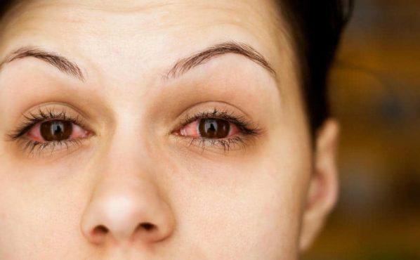 eyelid-twitching-inmarathi10