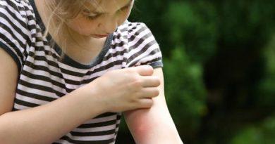 mosquito bite-inmarathi07