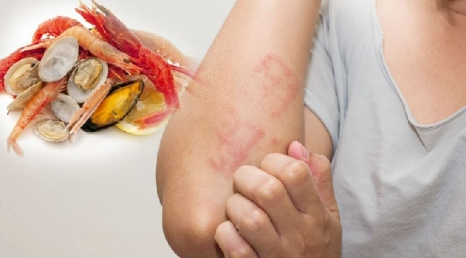 food-allergy-inmarathi