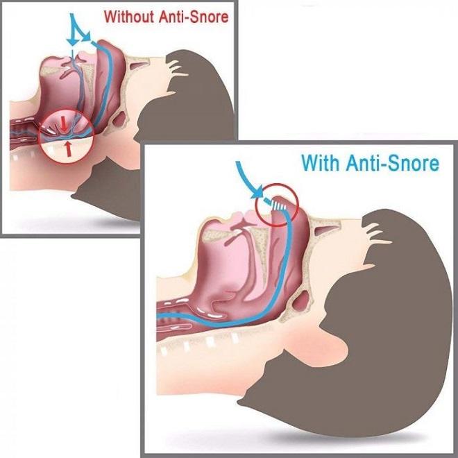 snoring 1 InMarathi