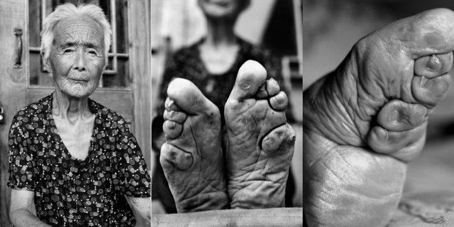 footbinding-inmarathgi