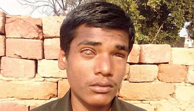 upendra-acid-inmarathi