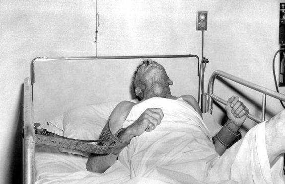 rabies-patient inmarathi