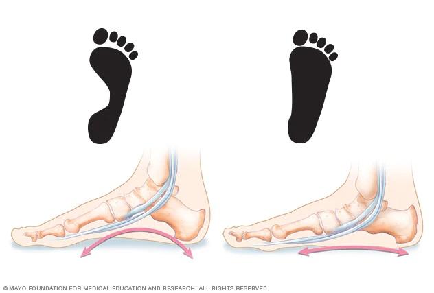 Flat Foot InMarathi