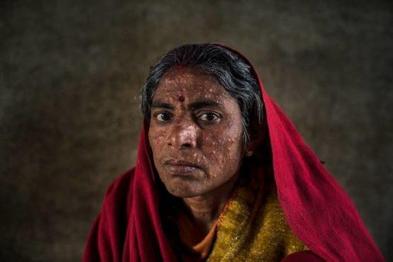 devi disease inmarathi
