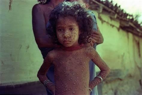 small pox 3 inmarathi