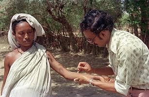 small pox inmarathi