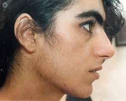 chin hair inmarathi