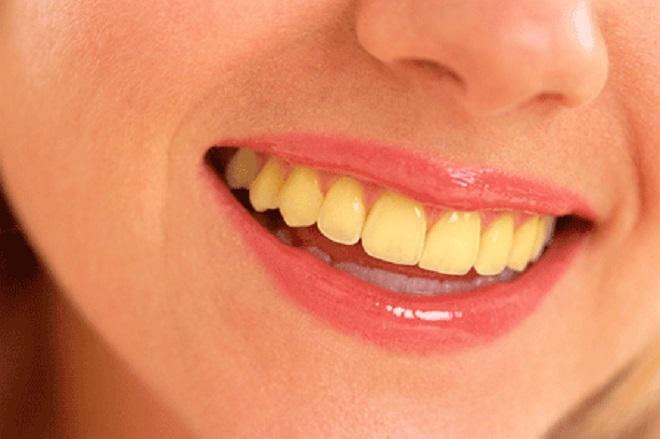 yellow tooth inmarathi