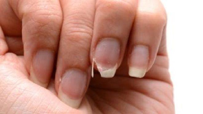 nails inmarathi