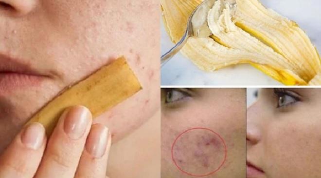 benefits of banana peel inmarathi