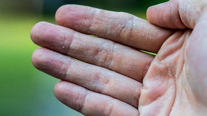 dry hands inmarathi