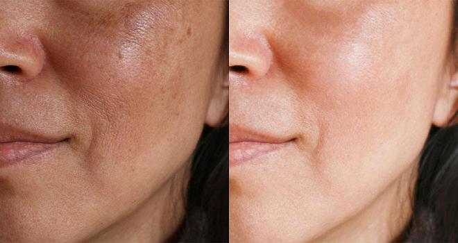 skin toning inmarathi
