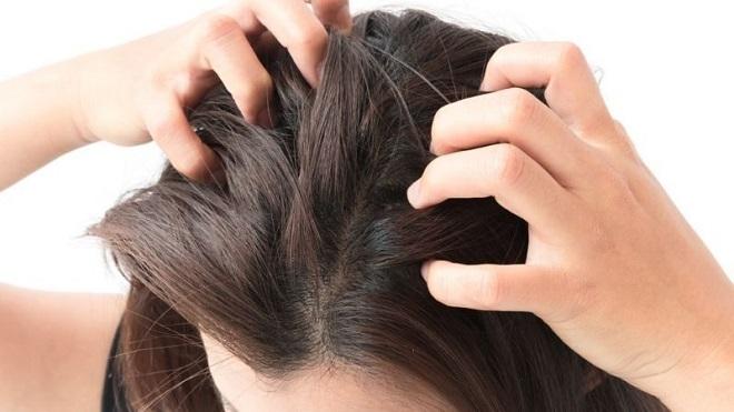 itchy scalp inmarathi