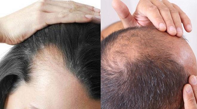 hairfall Inmarathi