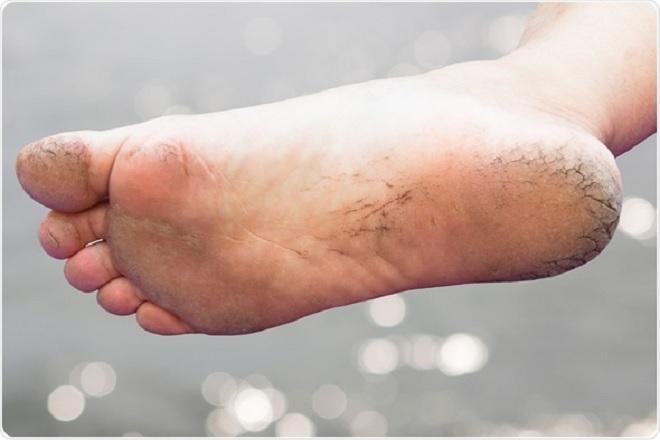 leg crack inmarathi