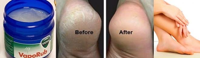 leg crack inmarathi2