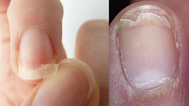 weak nails inmarathi