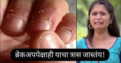 nail peeling inmarathi