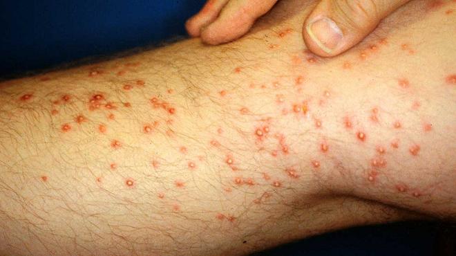 ant allergy 3 inmarathi