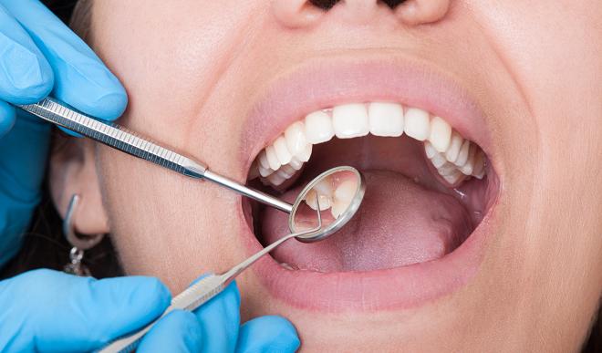 dental health inmarathi