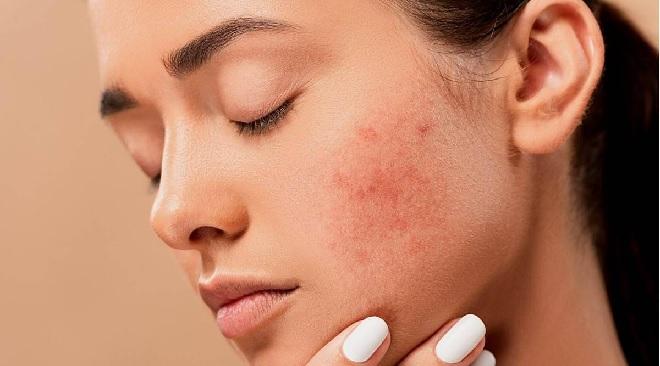 pimples inmarathi
