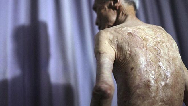 scars inmarathi
