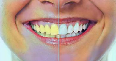yellow teeth inmarathi