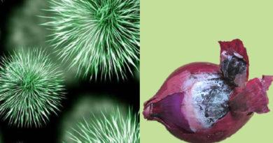 म्युकरमायकोसिस आणि कांद्यावरील काळी बुरशी, यांचा थेट संबंध आहे का? जाणून घ्या