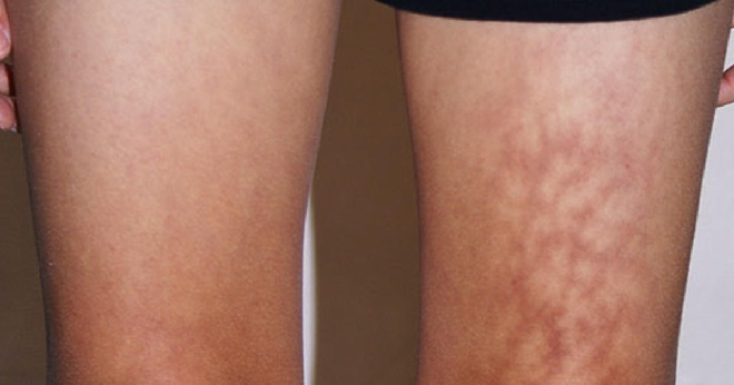 toasted skin syndrome inmarathi