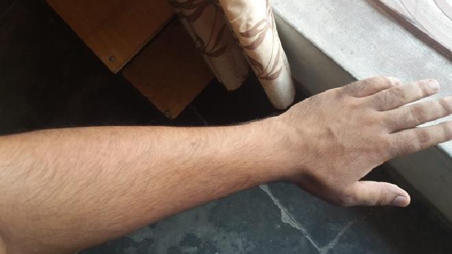 hair on hands inmarathi