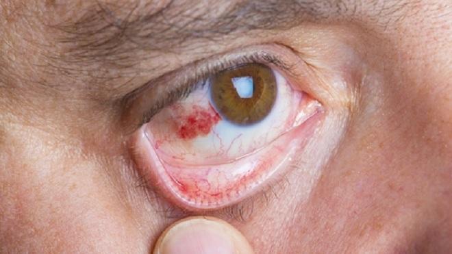 eye 1 inmarathi