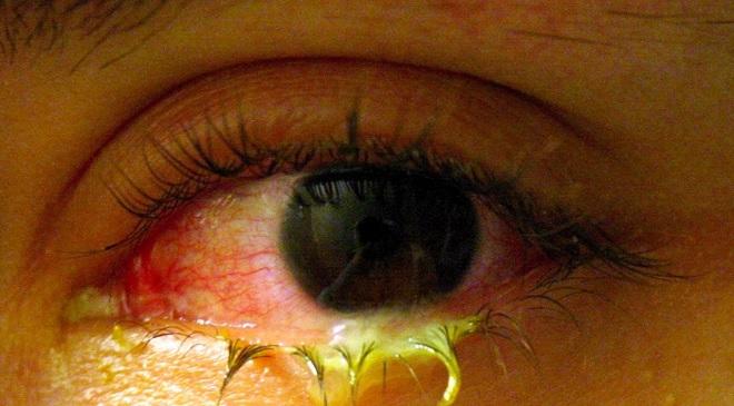 eye feature inmarathi